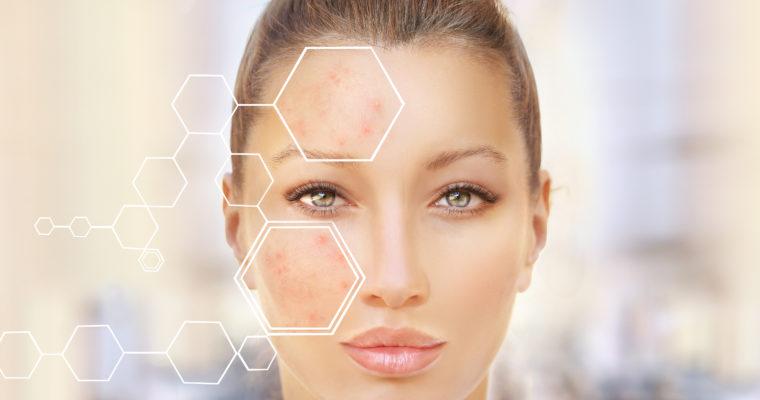 L'isotrétinoïne pour traiter l'acné : quelles précautions ?